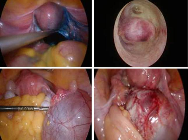 Endoscopic-Surgeries