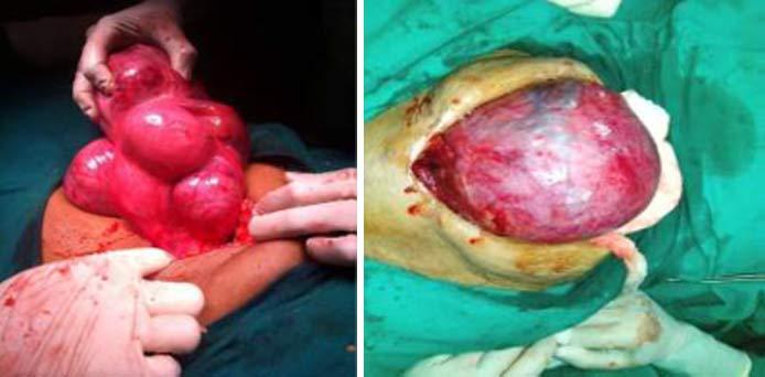 Open-Surgeries